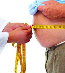 High Body Mass Index (above 30)