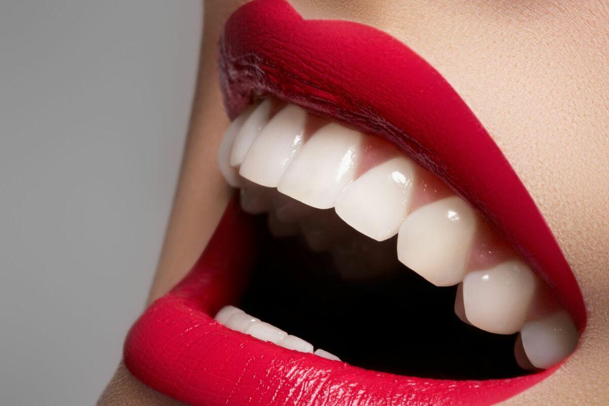 Косметическое отбеливание зубов в студии Magic White