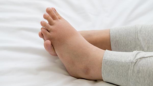 Svullna ben vid graviditet: Tips för att lindra obehaget