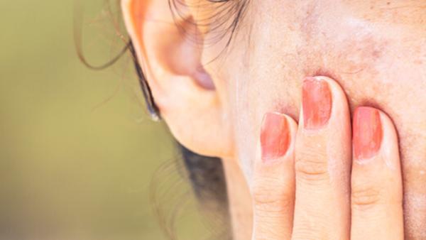 ¿Te han salido manchas de pigmentación?