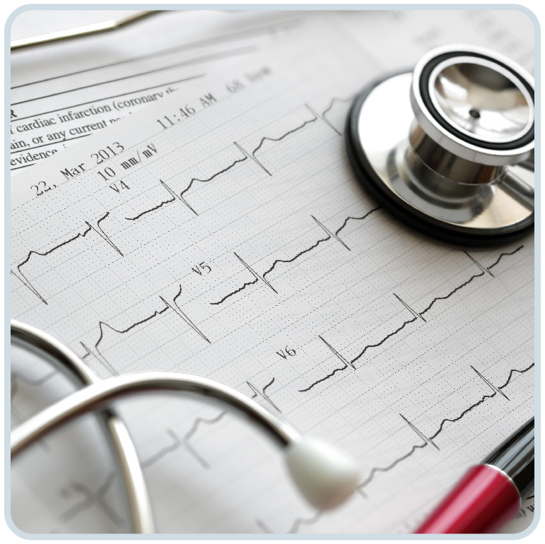 心電圖檢測