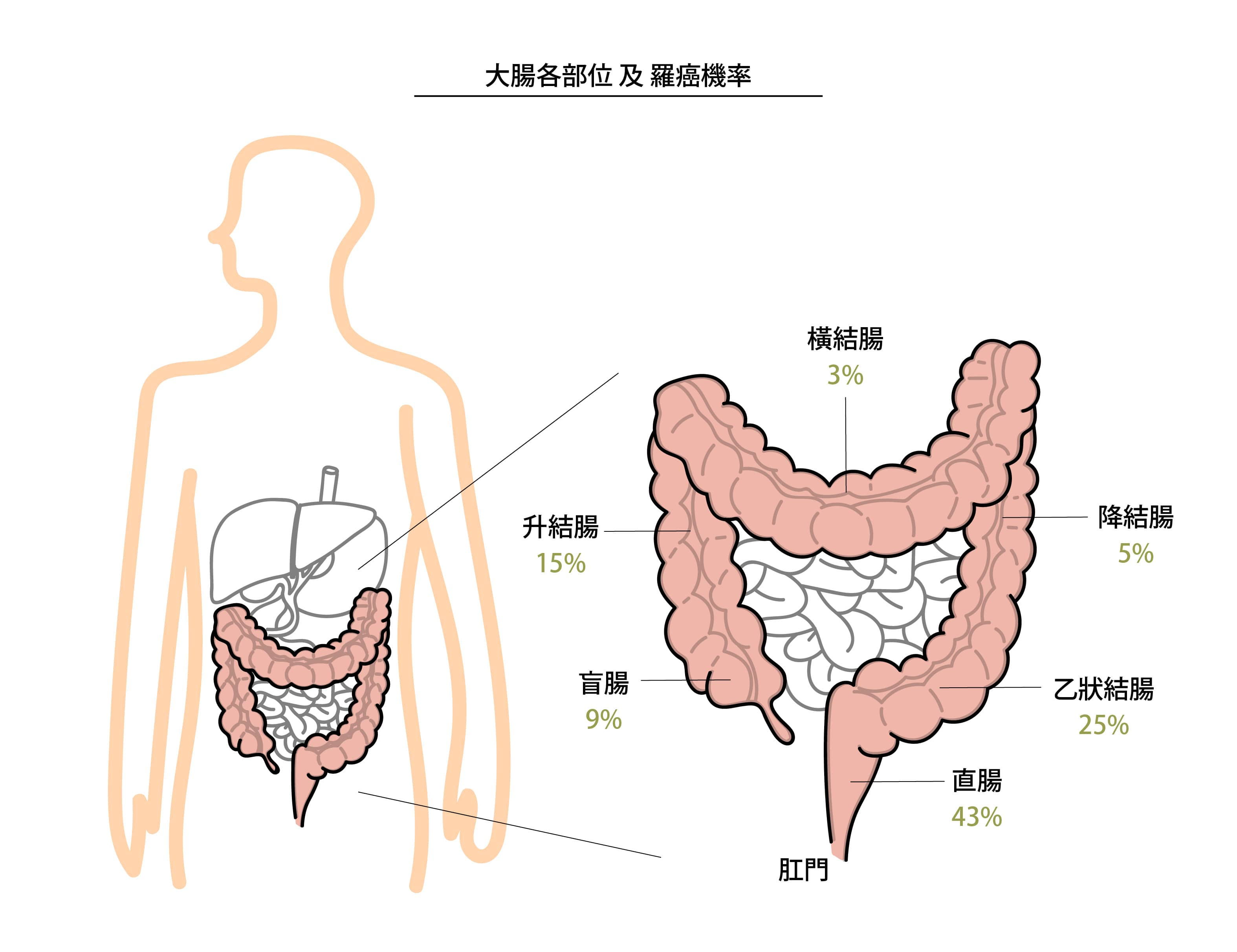 大腸各部位及患癌機率