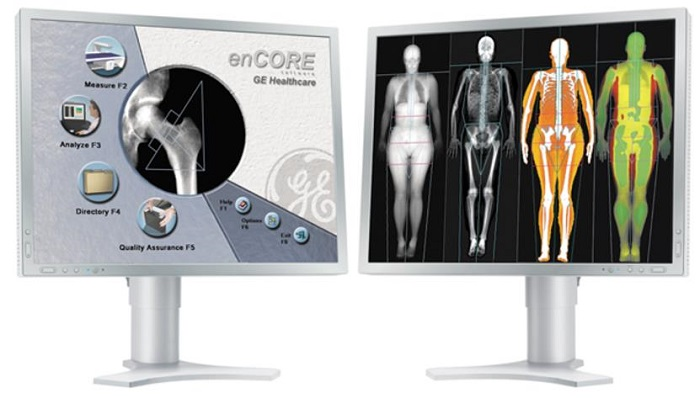 ANALYSIS SOFTWARE / DATA EXCHANGE / FOR BONE DENSITOMETRY