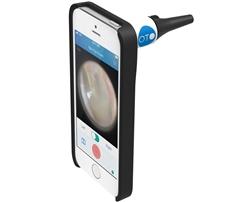 Bionix Clinician's iPhone Otoscope (Oto For Clinicans)