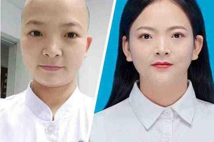 24 Jam Rawat Pasien Corona, Perawat di Cina Rela Gunduli Rambut Karena Alasan ini