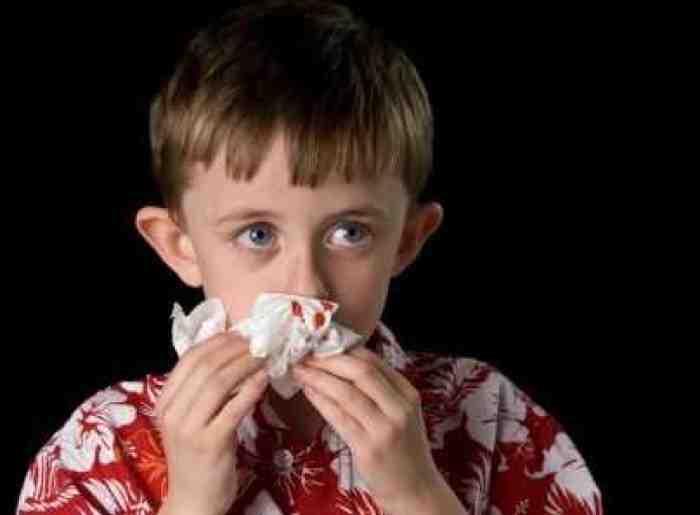 Bunda Wajib Tahu, ini Penyebab Mimisan pada Anak dan Cara Mengatasinya