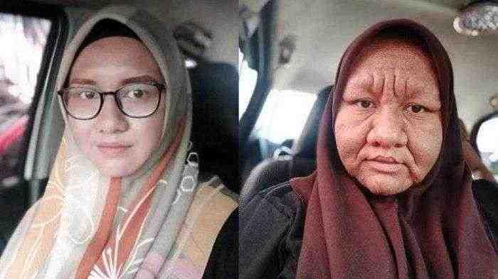 Wajahnya Jadi Tua Selama Hamil, Wanita ini Dihina dan Dicaci Tetangga