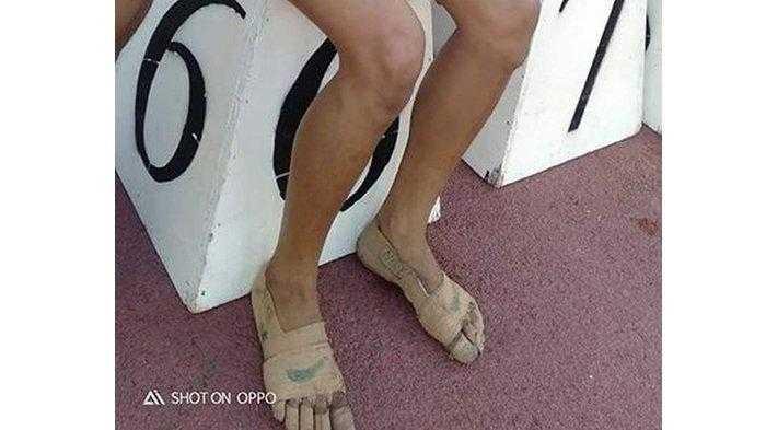 Tak Punya Sepatu, Gadis ini Perban Kakinya untuk Ikut Lomba Lari