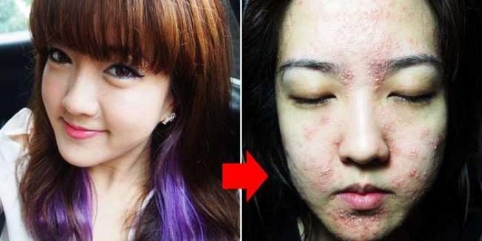 6 Efek Mengerikan Pakai Skincare Palsu, Bukan Cantik Malah Bikin Jijik