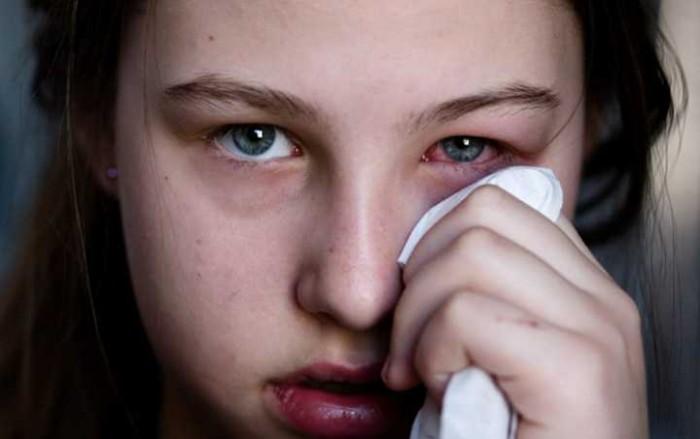 Gunakan 7 Bahan Alami Ini Sebagai Obat Mata Bengkak, 100% Ampuh!
