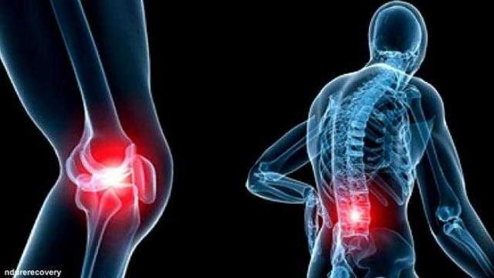 11Penyakit Tulang yang Wajib Diwaspadai