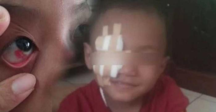 Efek Ngeri Membiarkan Anak Terlalu Lama Didepan TV