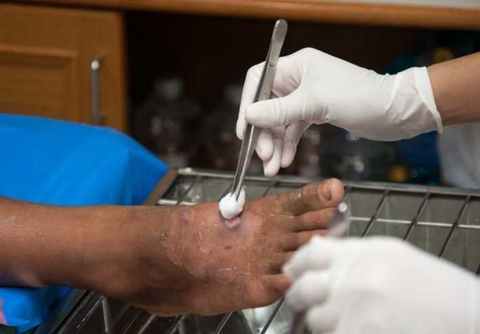 Sebabkan Kaki Diamputasi, Kenali Gejala dan Tanda Diabetes Berikut ini