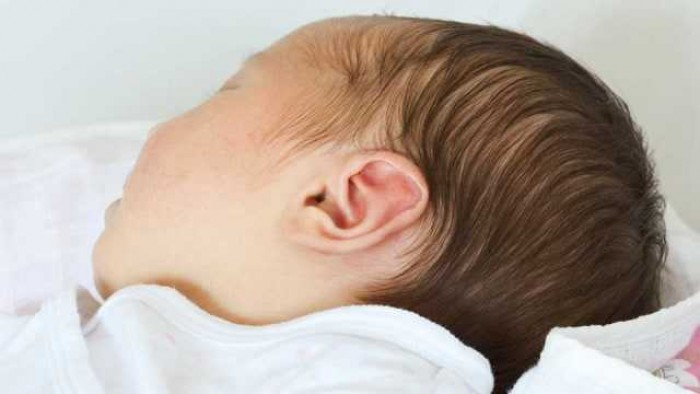 Bahayakah Benjolan di Belakang Telinga Pada Bayi?