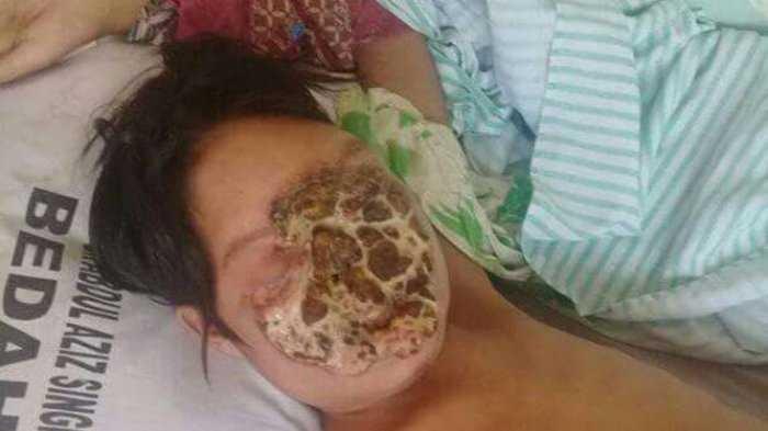 Cerita Remaja yang Kena Kanker Kulit Akibat Pakai Skincare KW