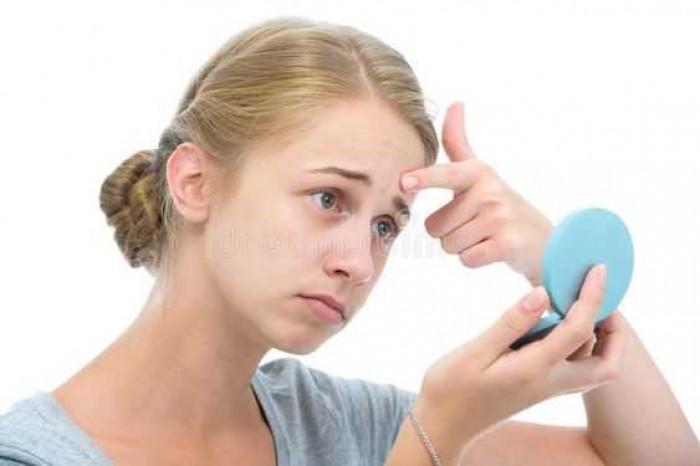 7 Tips Ampuh Mengatasi Kulit Wajah Kering, Iritasi, Berjerawat, dan Sensitif