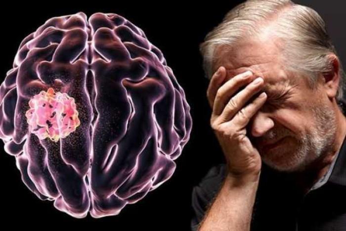 Tumor Otak:Gejala, Penyebab, dan Pengobatannya