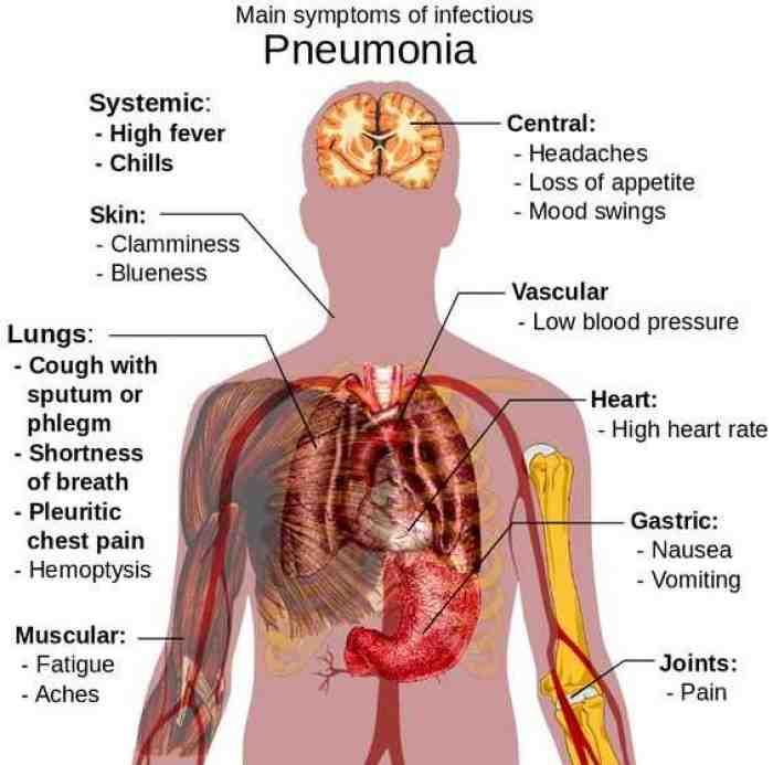 Pneumonia Adalah : Pengertian, Gejala, Penyebab, Pengobatan, dan Pengobatannya