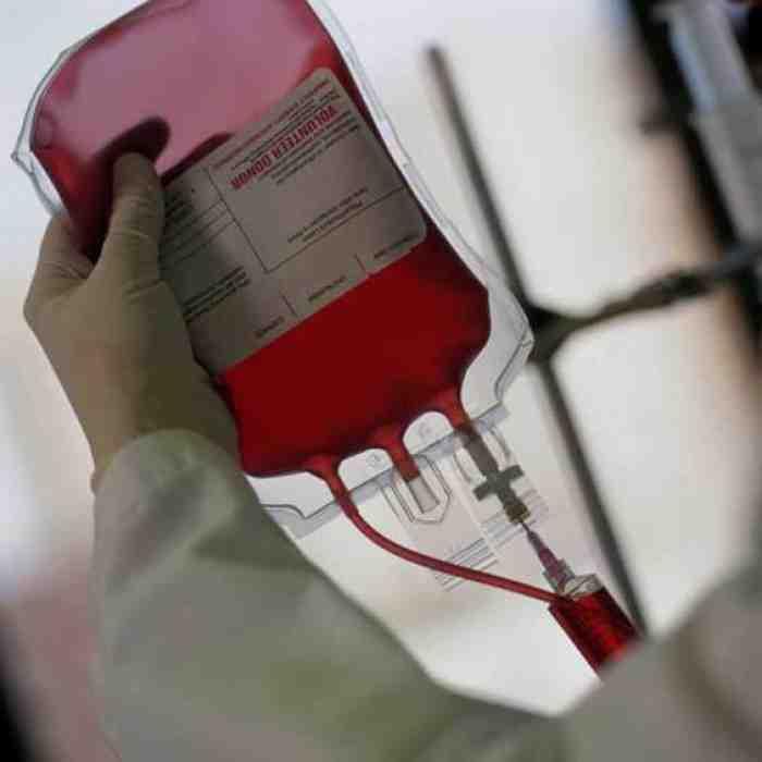 Hal yang Harus Anda Ketahui Sebelum MelakukanTransfusi Darah