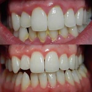 Cara Alami Menghilangkan Karang Gigi Secara Cepat